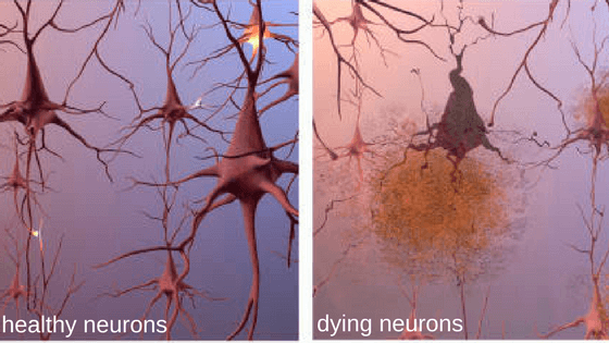 Alzheimer's neurons