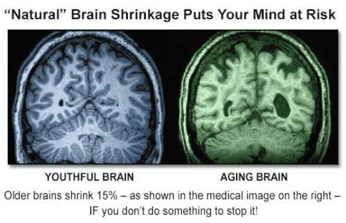 Young vs old brain