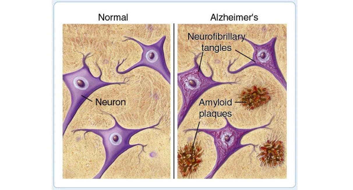 amyloid plaques